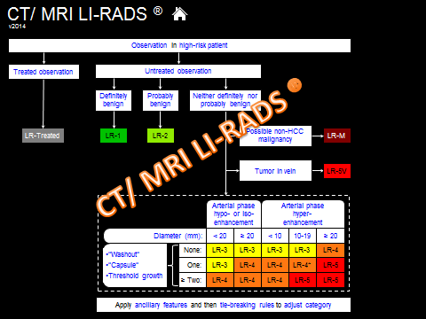 CT MR LIRADS v2014