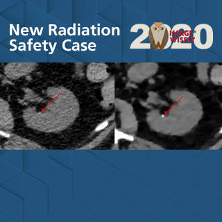 Image Wisely Radiation Safety Case Study