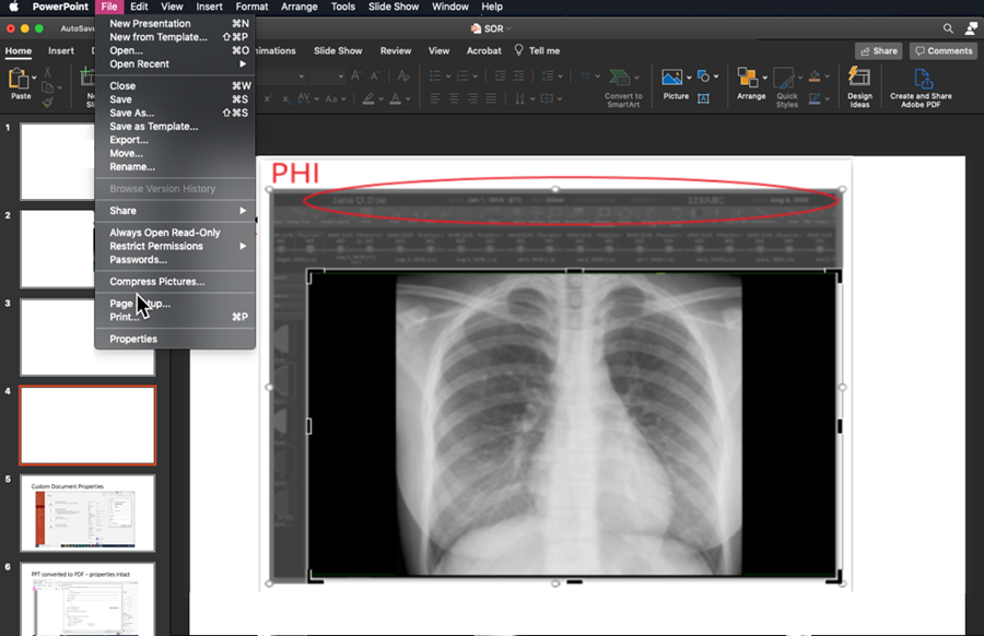 Keeping Phi Out Of Medical Image Presentations And Educational Products American College Of Radiology