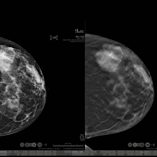 breast tomosynthesis cme course Breast imaging essentials courses from the asrt breast imaging essentials is a new 10-module online course series from the asrt these easy-to-follow, illustrative and interactive online courses are designed for existing mammographers and those who are studying for the mammography exam.