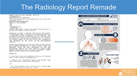 Reimagined radiology report version 1 (small)